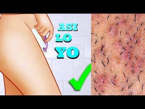 como quitar irritacion en zona intima por depilacion