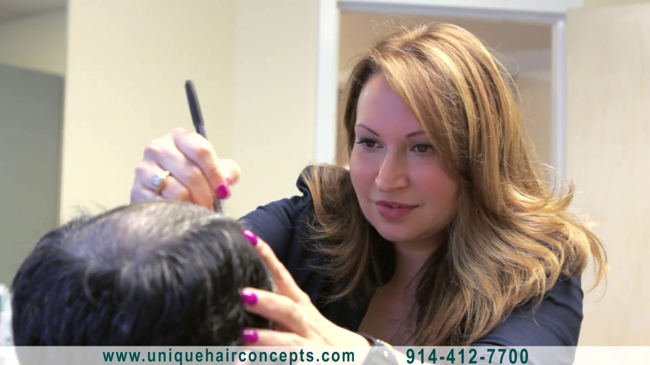CNC 3D Hair and Scalp Prosthesis application