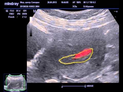 Полип эндометрия матки