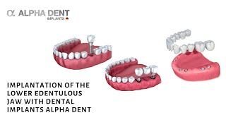 implantation of the lower edentulous jaw with dental implants alpha dent