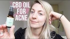 I TRIED CBD OIL FOR ACNE
