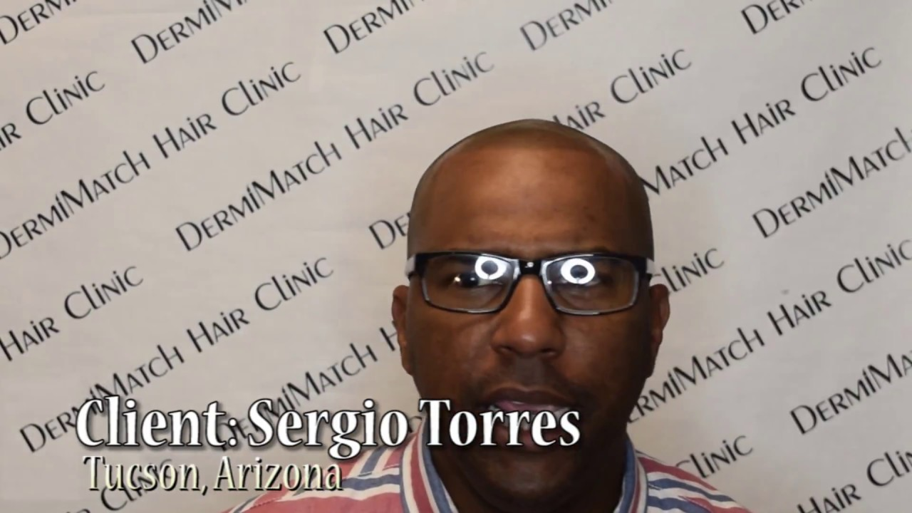 Scalp Micropigmentation Arizona Black Youtube