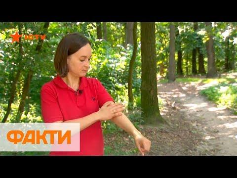 Укусы насекомых: чем опасны, лечение и как защититься