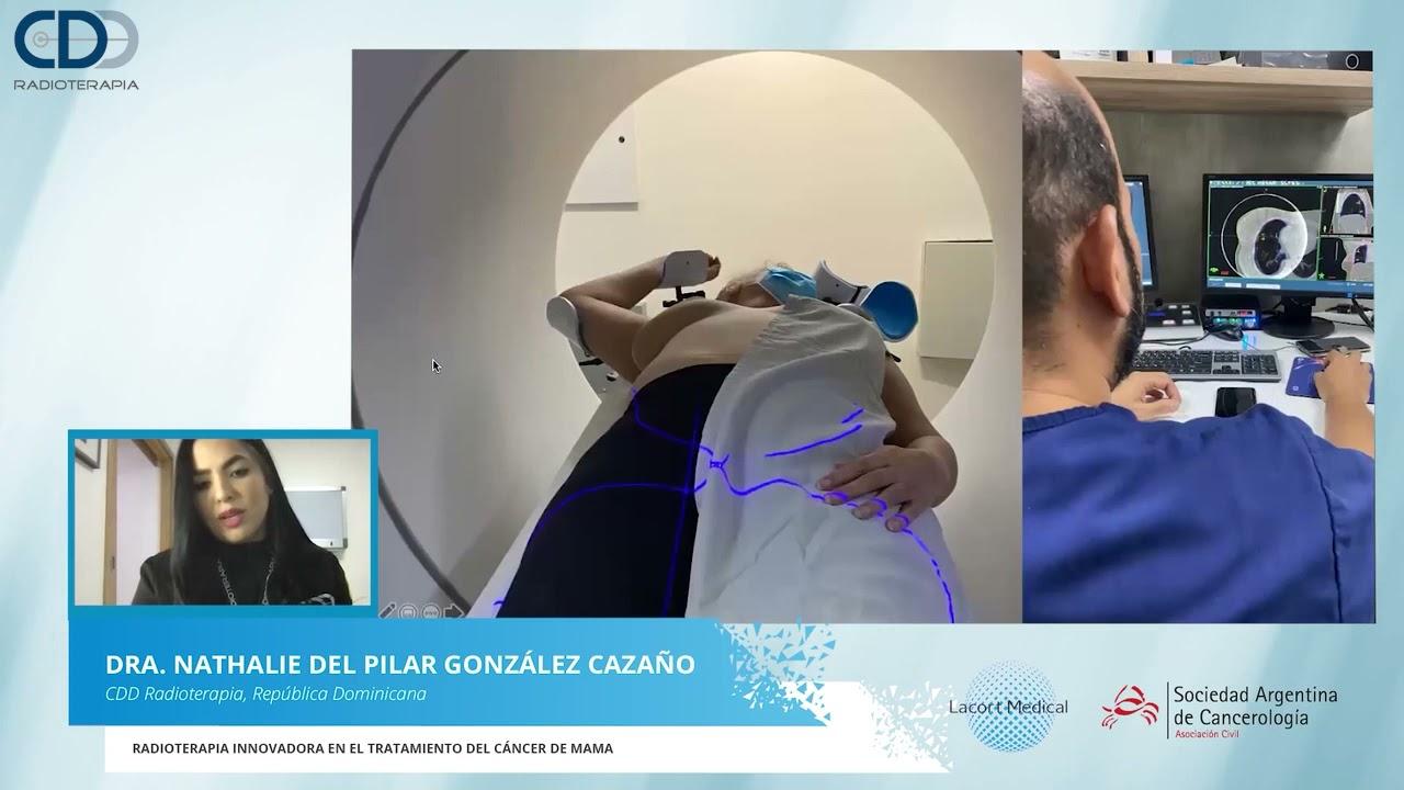 """""""Radioterapia Innovadora en Cáncer de Mama"""""""