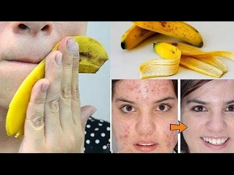 The Power Of Banana Peel From Teeth Whitening Skin Warts Removal