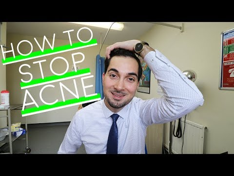 How To Get Rid of Acne | Best Spot Treatment | How To Use Be
