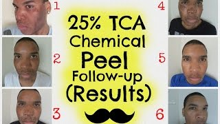 chemical peel   25 tca peel follow up results hd   session 3
