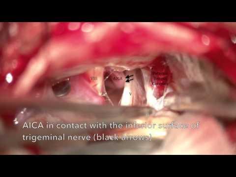 Endoscopic-AssistedEndoscopic-AssistedMicrovascular DecompressionEndoscopic-AssistedEndoscopic-Assis.