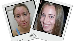 hqdefault - Exposed Acne Treatment Canada