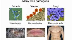 hqdefault - Pathogenesis Of Acne Rosacea
