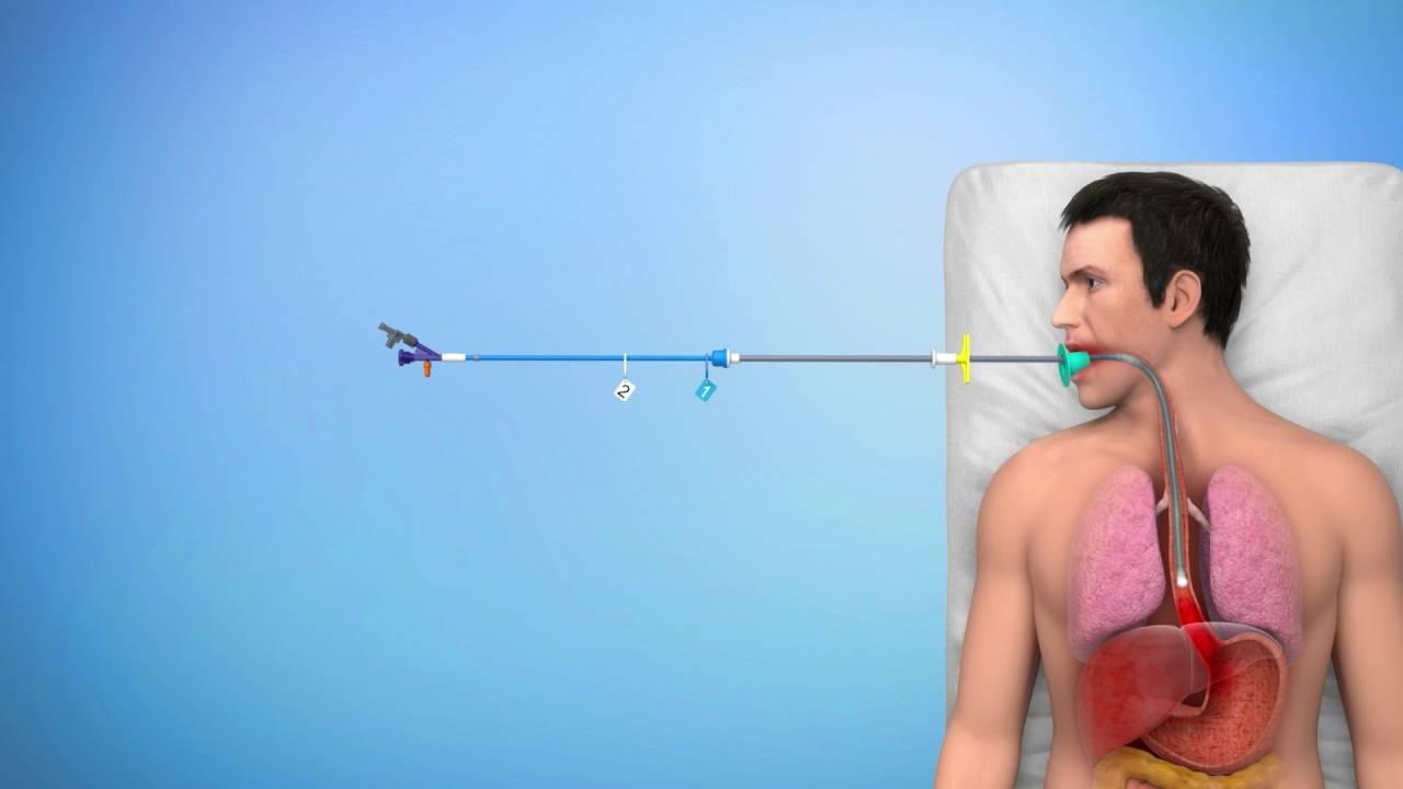SX-ELLA Stent Danis - Product Description and Procedure. - YouTube