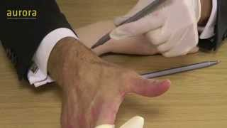 De Quervain's Tenosynovitis and Steroid Injections TUTORIAL - Aurora Clinics