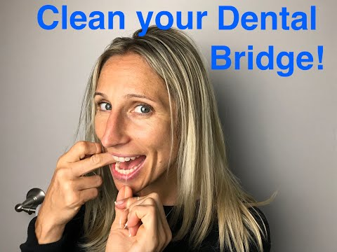 How to Clean Your Dental Bridge!!