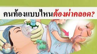 คลอดลูก : คนท้องแบบไหนต้องผ่าคลอด? | การผ่าคลอด | คนท้อง Everything
