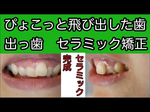 人の印象と歯並びは関係が深いと思い治療を決心