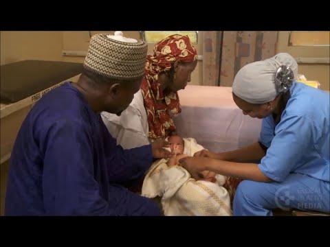 Umbilical Infections - Newborn Care Series