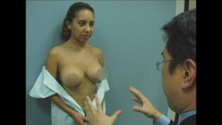 Breast Augmentation Revision And Rhinoplasty