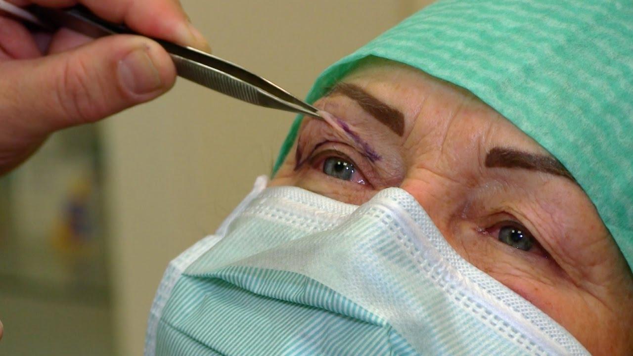 Varpos implanto įdėjimo operacija