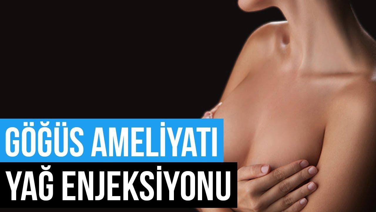 Göğüs Ameliyatında Yağ Enjeksiyonu Yöntemi