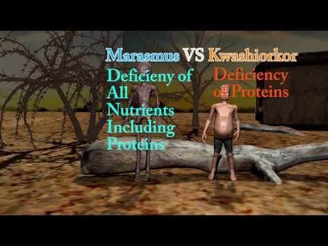 Marasmus- Difference Between Marasmus, Cachexia and Kwashiorkor