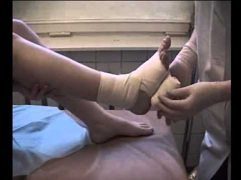 Артроз коленного сустава фото больного и здорового сустава