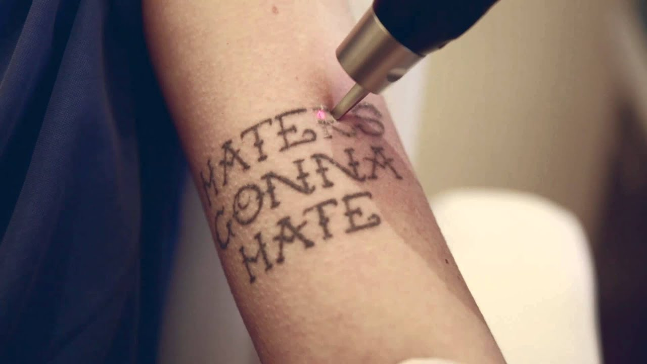 tattoo borttagning stockholm