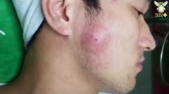 hq2 - Hard Cystic Pimple On Chin