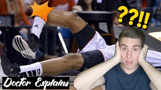 KEVIN WARE INJURY | Doctor Explains Infamous Basketball Injury