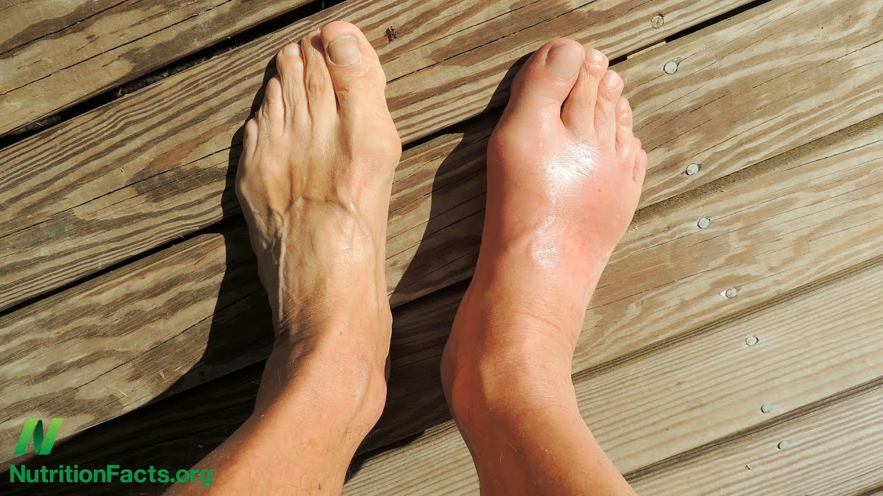 high levels of uric acid causes foods to avoid gouty arthritis how to reduce gout pain immediately