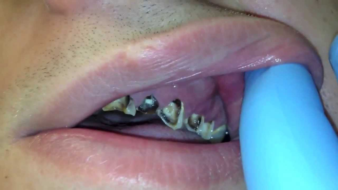 Dental Abscess Youtube