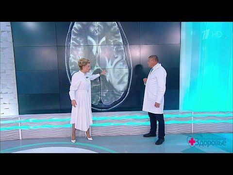 Поздняя беременность и рак мозга - есть ли связь? Здоровье.29.09.2019