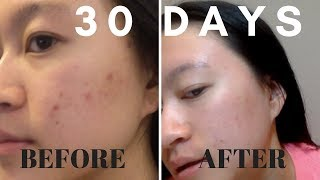 30 DAYS Aztec Secret Healing Clay Mask: RESULTS