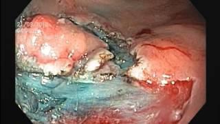Early rectal cancer / рак прямой кишки(, 2014-07-29T02:11:41.000Z)
