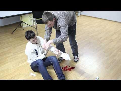 Как оказать первую помощь при открытом переломе конечности