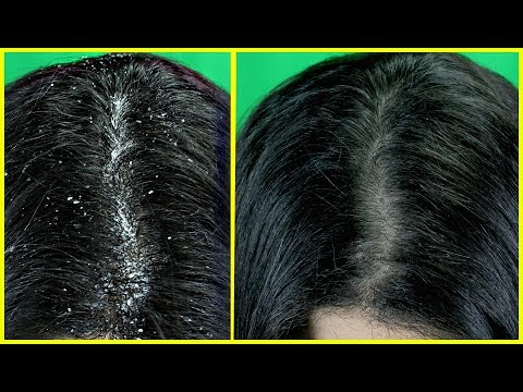 Just 1 Wash To Get Rid Of Dandruff Permanently - Home Remedy To Remove Dandruff
