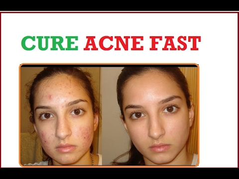 How To Get Rid Of Acne Scars || Ance Scar Removal At Home || Acne Cure