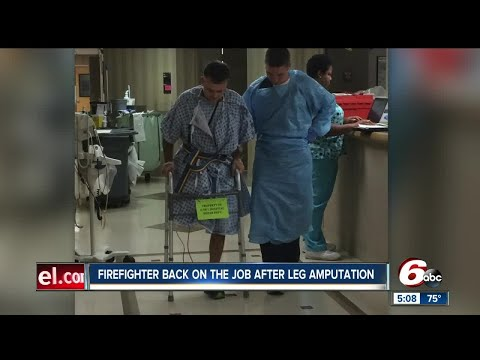 Fishers firefighter back on the jobs after leg amputation