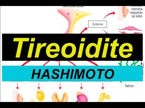 tireoidite-de-hashimoto-inflamação-auto-imune
