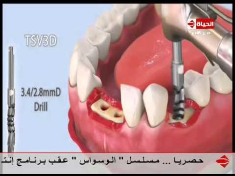 إنتبهوا أيها السادة د محمد عماد فيديو يوضح عملية زراعة الأسنان Youtube