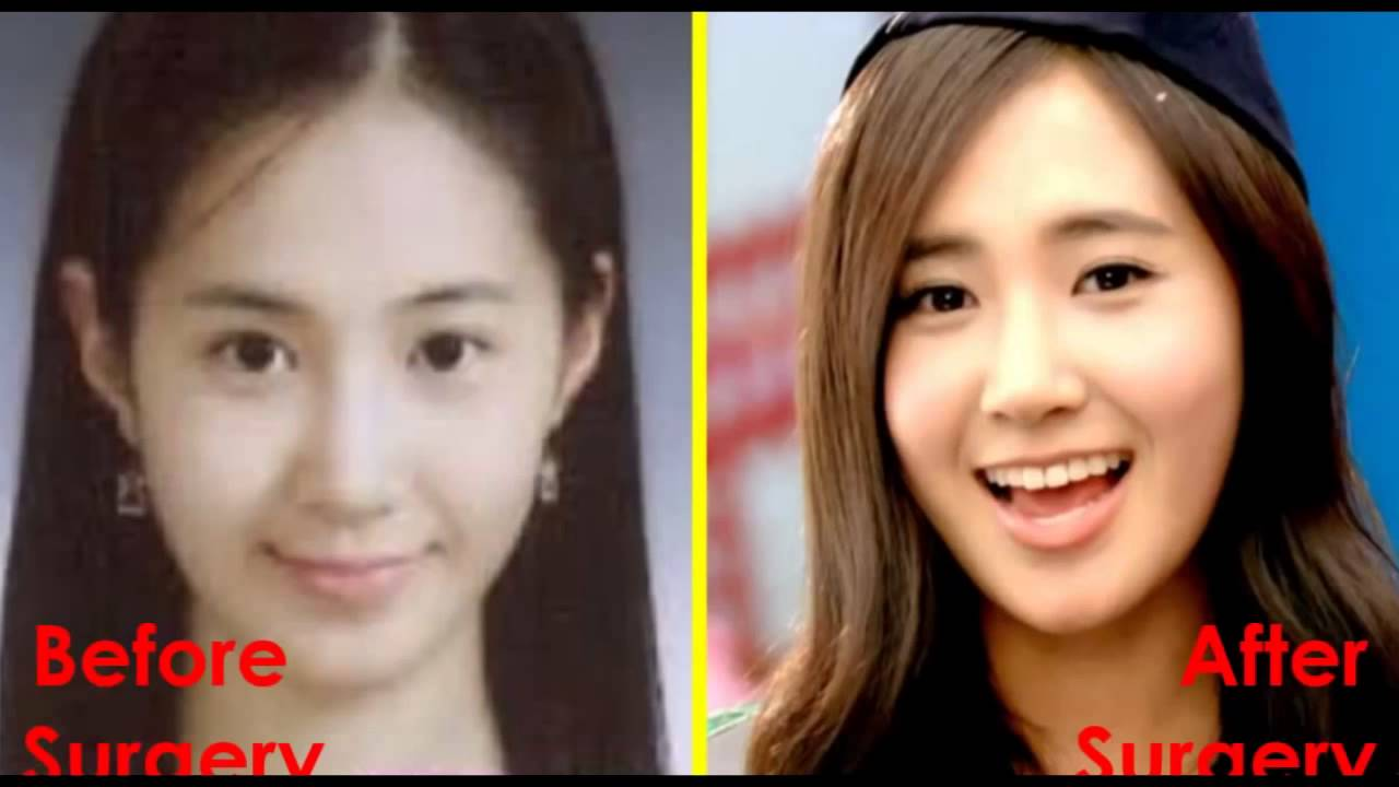 Snsd Before After Plastic Surgery 2014 Ranked Official Hd Youtube