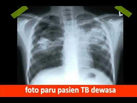 TBC.mp4