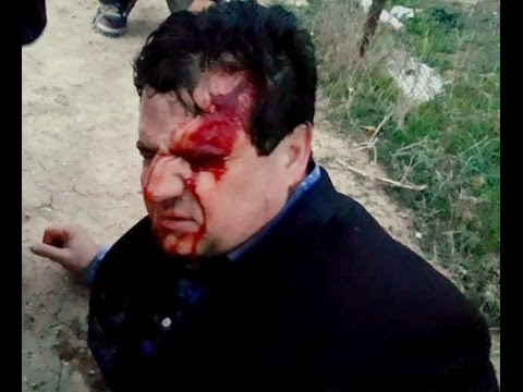 Arab Joint List party leader MK Ayman Odeh was struck in the head by a rubber bullet
