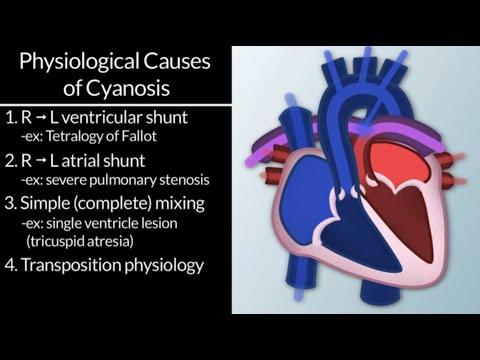 """Cyanotic Congenital Cardiac Defects: Diagnosis & Treatment,"" by Tom Kulik, MD, for OPENPediatrics"
