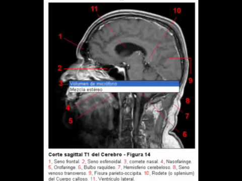 Resonancia magnetica cerebral con referencias - YouTube
