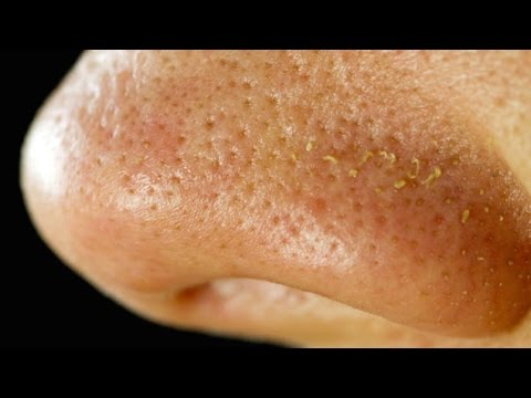 There Are Tiny Mites Living On Your Face Youtube