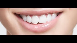 Repair a Chipped Tooth with DIY Tooth Bonding