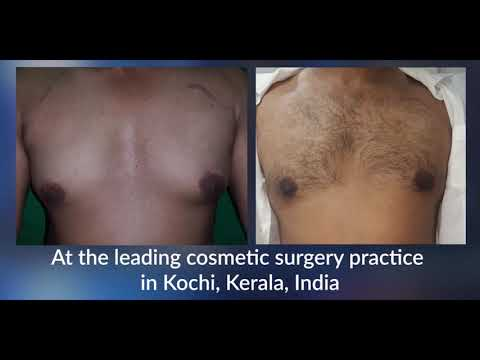 Male Breast(Gynecomastia) reduction surgery by Plastic Surgeons @ Eterno, Kochi