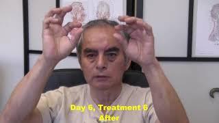 Parkinson's disease Testimonial - Day 6, Treatment 6