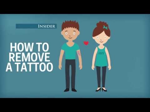 What Happens During Laser Tattoo Removal