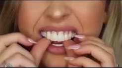 Instant Smile Comfort Fit Flex Cosmetic Teeth
